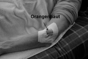Orangenhaufeffekt bei Tapen eines Tennisarms mit einem DiamondTape