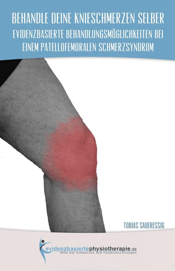 Buch Knieschmerzen (patellofemorales Schmerzsyndrom