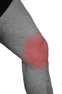 Beispiel einer der vielen Laufverletzungen am Knie