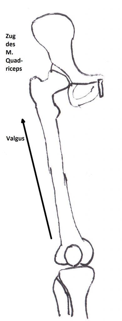 Kniescheibenfehlstellung durch natürliche Valgusstellung der unteren Extremität und des Zugs des M. quadriceps