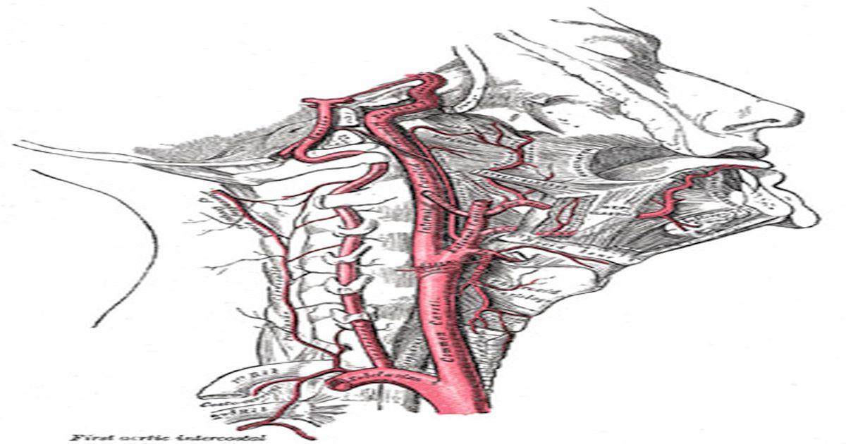 Kann ein Einrenken des Nacken einen Schlaganfall auslösen?